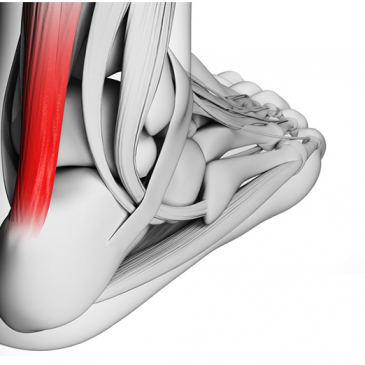 Fixing achilles injuries