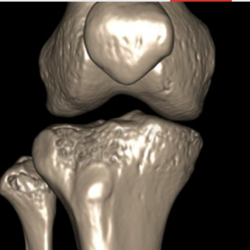 Considering knee surgery ?